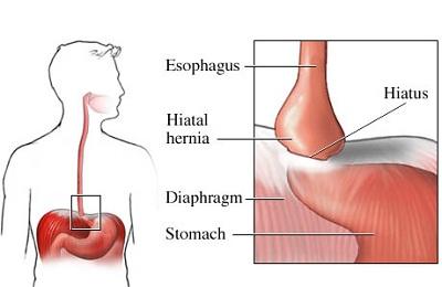 Acid Burn Sore Dry Throat